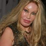 Jocelyn Wildenstein after Plastic Surgery
