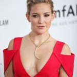 Kate Hudson after plastic surgery